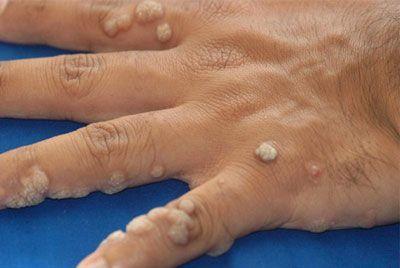 Бородавки на руках: лечение, причины