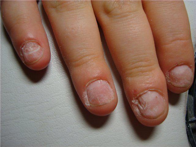 почему не надо грызть ногти