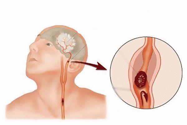 Инсульт головного мозга: предвестники, симптомы и лечение