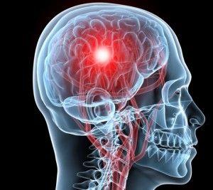 Инсульт мозга и какие существуют способы профилактики?