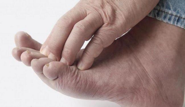 Как лечить экзему на ногах