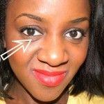 Как убрать мешки под глазами. Причины появления мешков и лечение