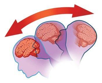 Можно ли вылечить сотрясение мозга домашними средствами?