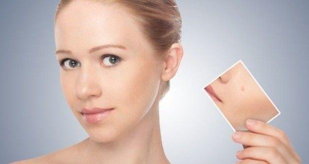 Пигментные пятна на коже: как избавиться в домашних условиях