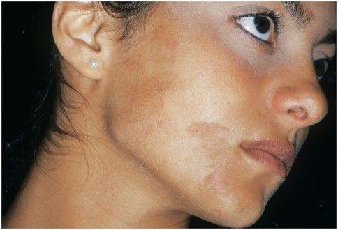 пигментация кожи из-за болезни