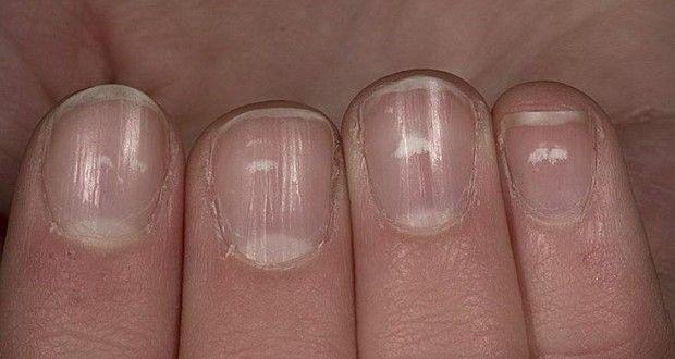 Появились белые пятнышки на ногтях? Узнайте, что это означает!