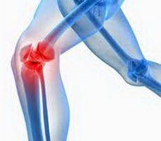 Причины и лечение хруста в коленных суставах