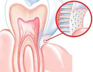 Причины и лечение повышенной чувствительности зубов
