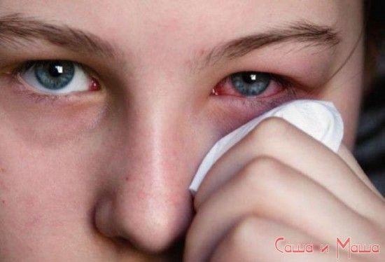 Конъюнктивит симптомы и лечение