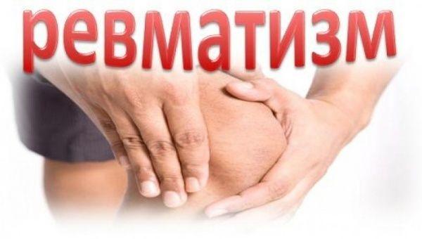 Симптомы и лечение ревматизма суставов