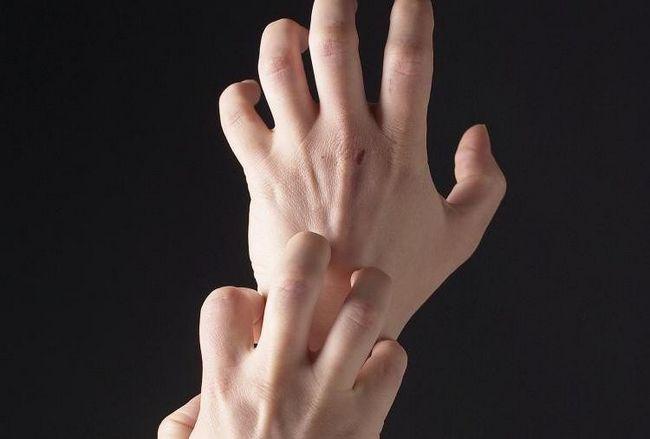 Сухая экзема на руках: причины, симптомы, лечение