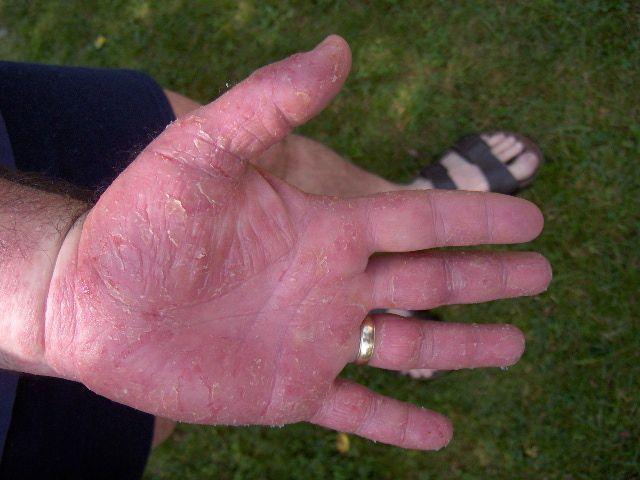 воспаленные руки