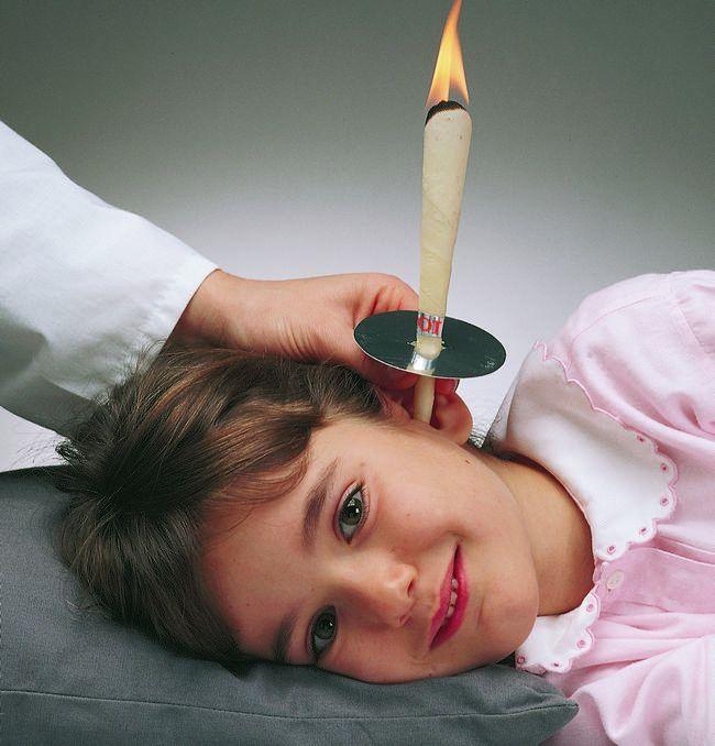 ушные свечи для детей