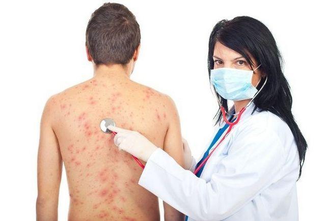 Как устранить высыпания и зуд на коже