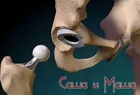 Замена тазо-бедренного сустава