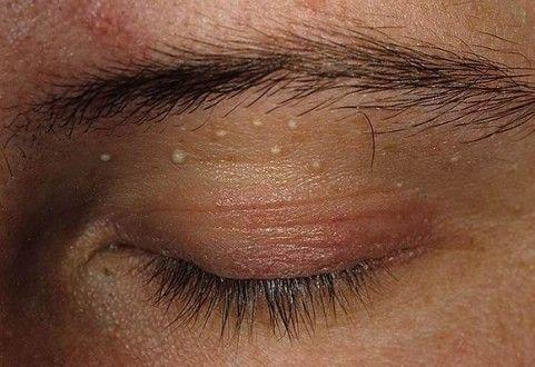 Жировики на глазах